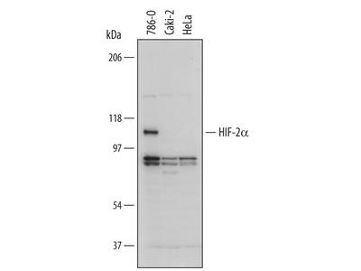Human HIF-2 alpha / EPAS1 Antibody