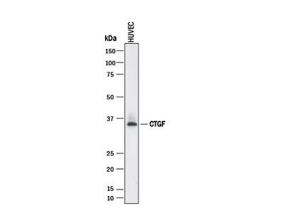 CTGF /CCN2 Antibody
