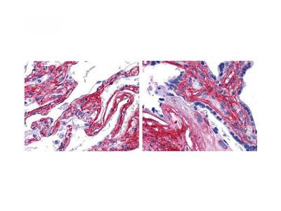 Collagen Type V antibody