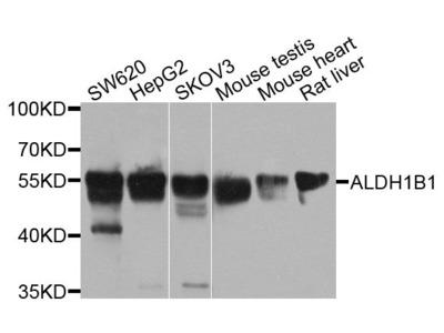 ALDH1B1 Polyclonal Antibody