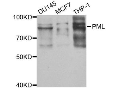 [KO Validated] PML Polyclonal Antibody
