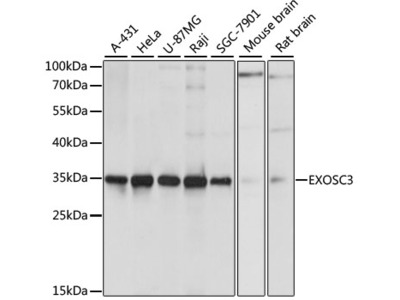 EXOSC3 Polyclonal Antibody