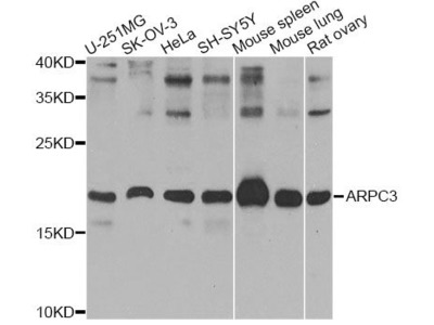 ARPC3 Polyclonal Antibody
