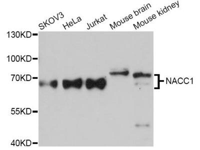 NACC1 Polyclonal Antibody