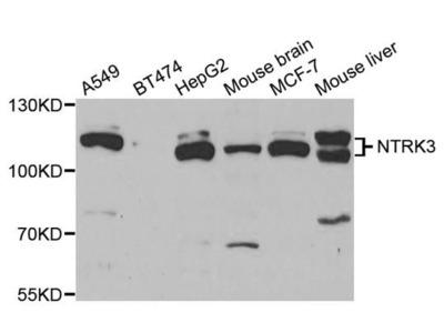 NTRK3 Polyclonal Antibody