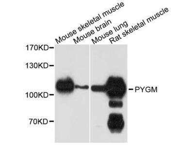 PYGM Polyclonal Antibody