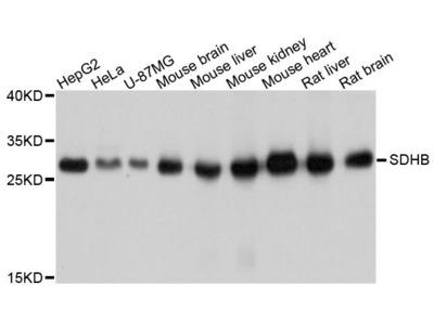 SDHB Polyclonal Antibody