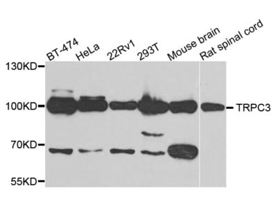 TRPC3 Polyclonal Antibody