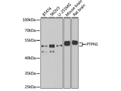 [KO Validated] PTPN1 Rabbit pAb