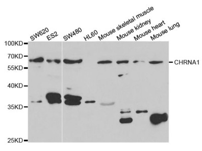 CHRNA1 Rabbit pAb