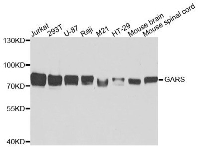 GARS Polyclonal Antibody