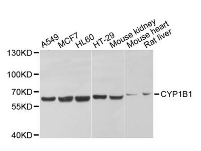 CYP1B1 Polyclonal Antibody