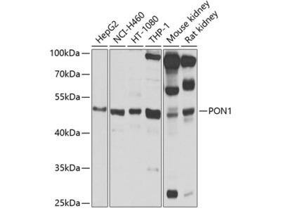 PON1 Polyclonal Antibody