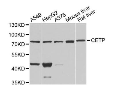 CETP Polyclonal Antibody