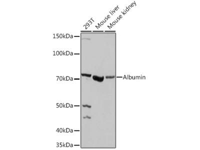 ALB Polyclonal Antibody