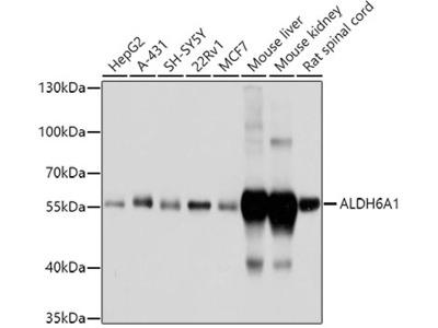 ALDH6A1 Polyclonal Antibody