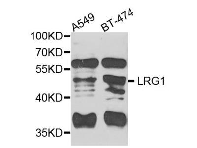 LRG1 Polyclonal Antibody