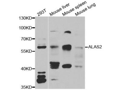 ALAS2 Polyclonal Antibody