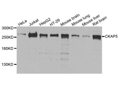 CKAP5 Polyclonal Antibody