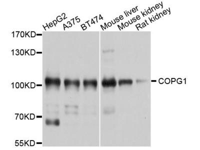 COPG1 Rabbit pAb
