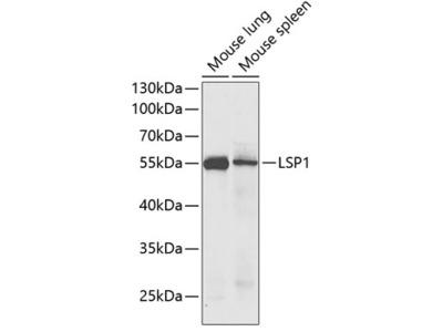 LSP1 Polyclonal Antibody