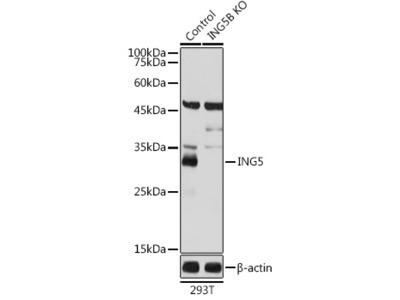 ING5 Polyclonal Antibody