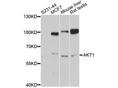 AKT1 Antibody