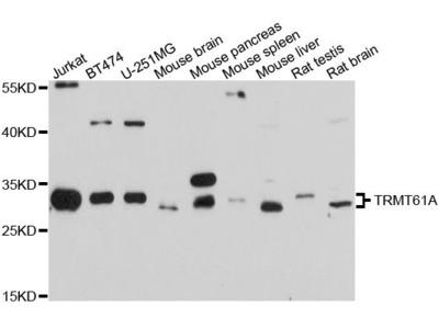 TRMT61A Polyclonal Antibody