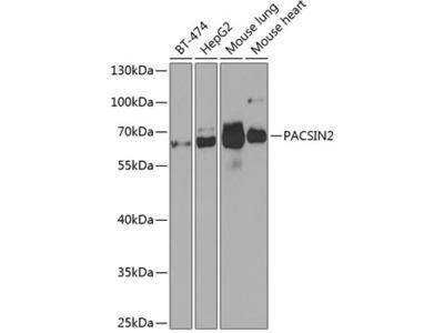 PACSIN2 Polyclonal Antibody