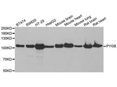 PYGB Polyclonal Antibody
