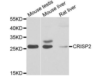 CRISP2 Polyclonal Antibody