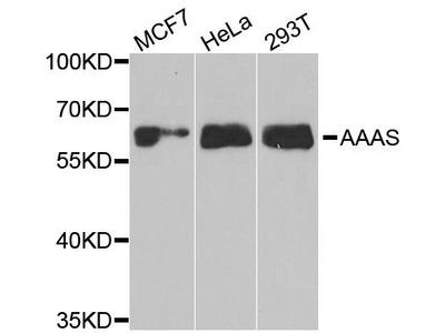 AAAS Polyclonal Antibody