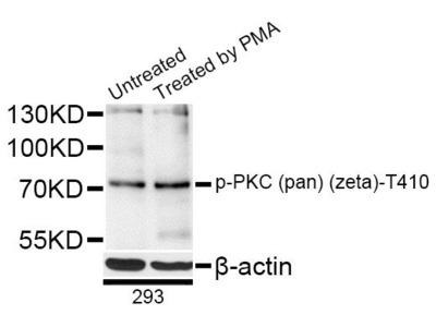 Phospho-PKC (pan) (zeta)-T410 pAb Antibody