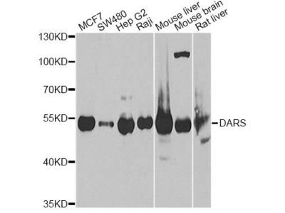 DARS Polyclonal Antibody