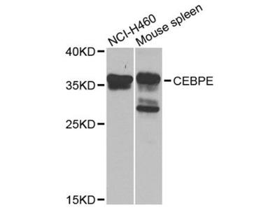 CEBPE Polyclonal Antibody