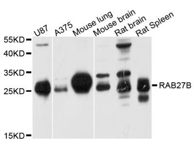 RAB27B Antibody