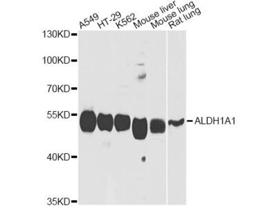 ALDH1A1 Polyclonal Antibody