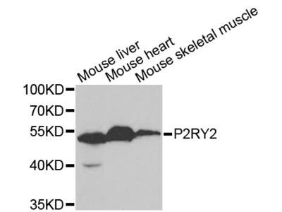 P2RY2 Polyclonal Antibody