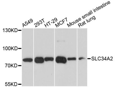 SLC34A2 Polyclonal Antibody