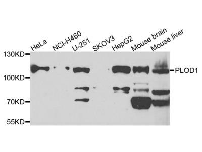 PLOD1 Polyclonal Antibody