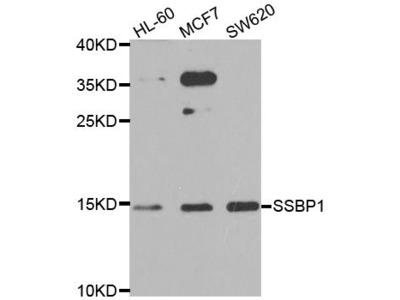 SSBP1 Polyclonal Antibody