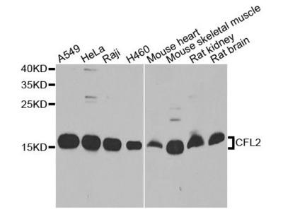 CFL2 Polyclonal Antibody