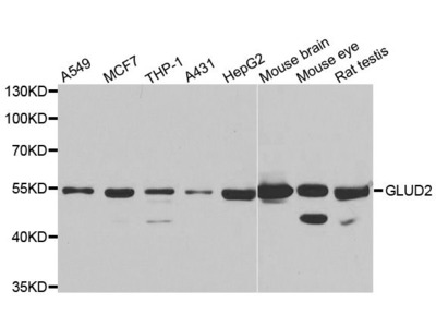 GLUD2 Polyclonal Antibody