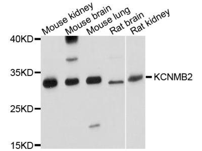 KCNMB2 Polyclonal Antibody