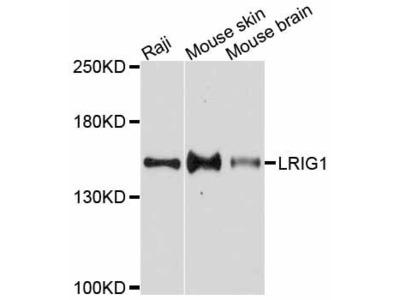 LRIG1 Polyclonal Antibody