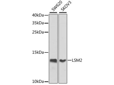 LSM2 Polyclonal Antibody