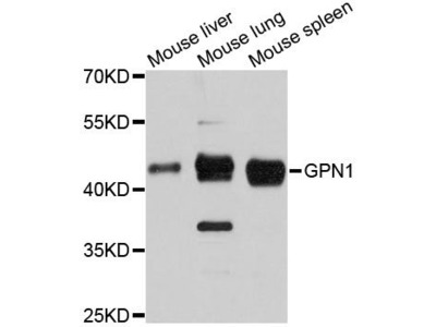 GPN1 Polyclonal Antibody