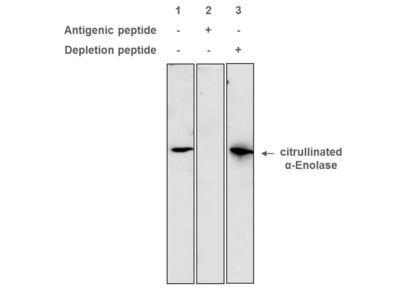Anti-citrullinated α-Enolase antibody