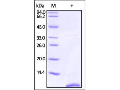 Human S100P / S100E Protein, Tag Free