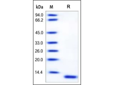 Human S100A6 Protein, Tag Free